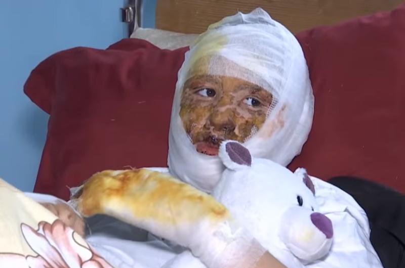 В Черновцах отец облил бензином и поджег заживо собственную дочь