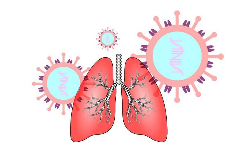воспаление легких - возбудители