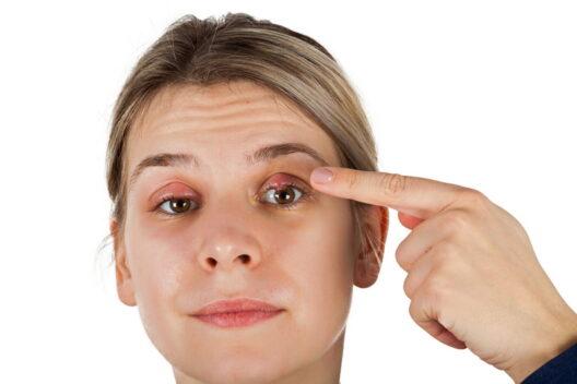 Как лечить ячмень на глазу: от заварки до тетрациклиновой мази-1200x800
