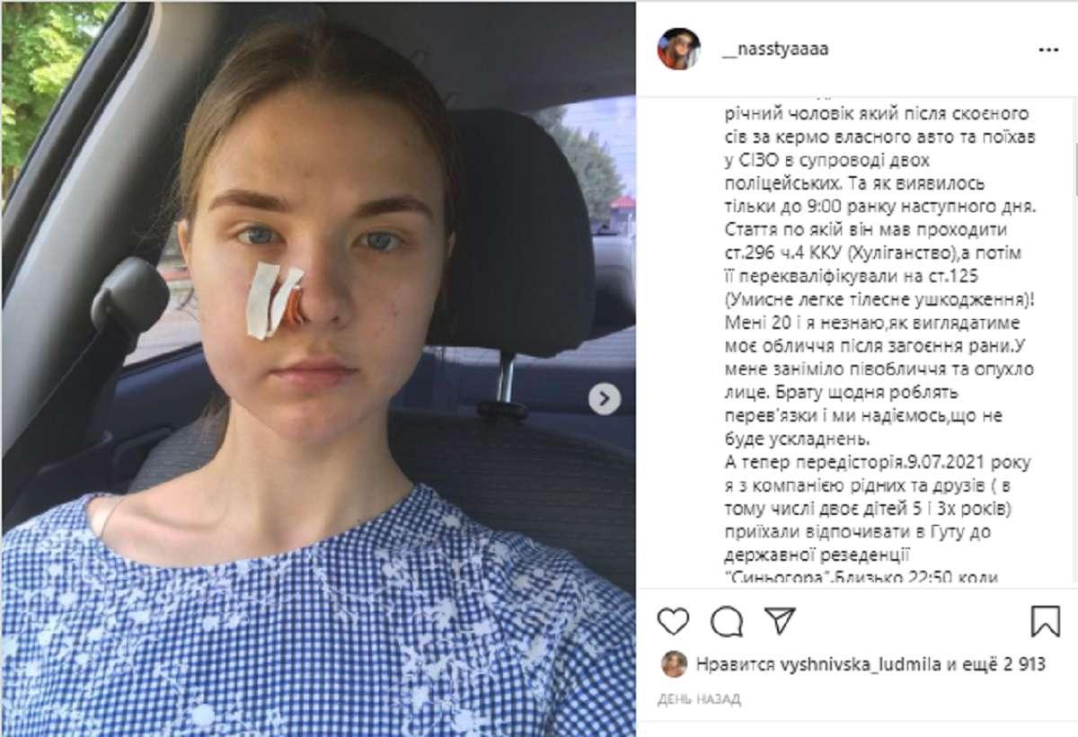 Онемело и отекло лицо: турист открыл стрельбу в отеле Прикарпатья - фото 1